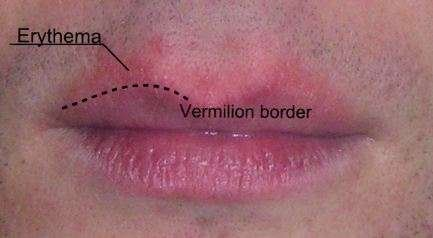 Erythema around the lips